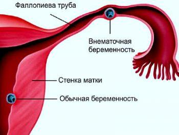 Изображение 7
